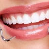 product - Teeth Whitening