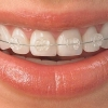 product - Teeth Alignment Correction